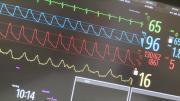Greffe : l'hôpital d'Annecy à la pointe
